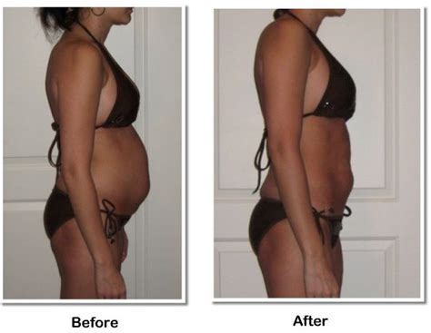 Detox For Bloating And Swelling by Dot Dot Dot Detoxing Before And After