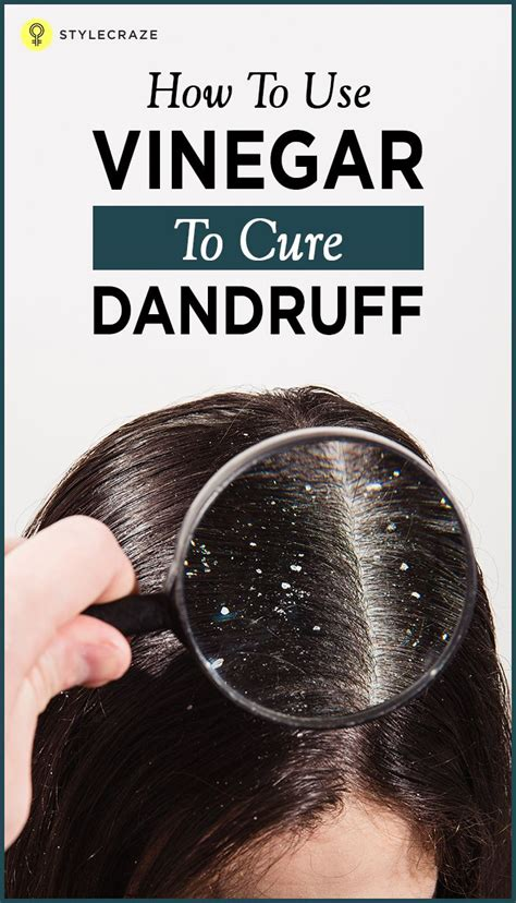 Do Hair Dryers Cause Dandruff the 25 best scalp causes ideas on