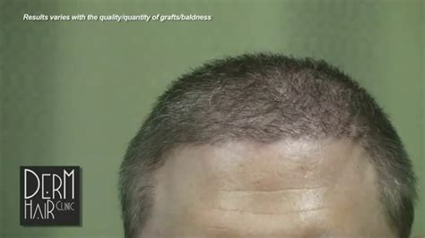 transplant hair from chest to head body hair transplant my severe baldness cured youtube