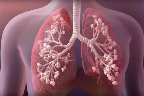 discovery  improve cystic fibrosis treatment