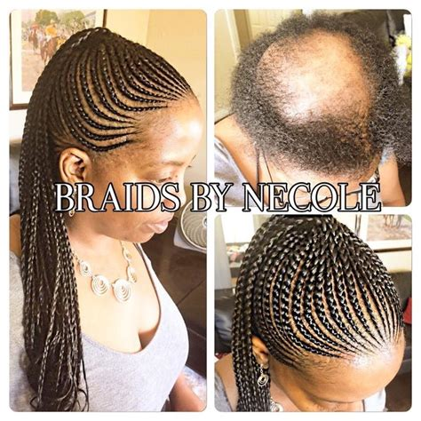 zzcover bald spot in the middle of hair 37 best images about alopecia hairstyles on pinterest