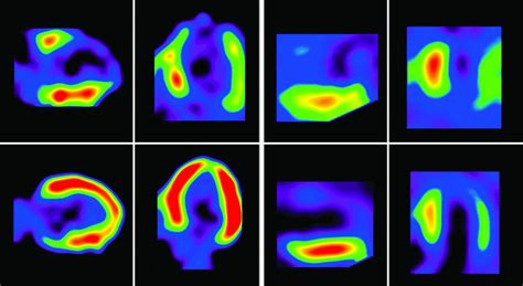 imaging technology expected  enhance patient access