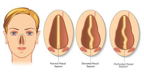 deviated septum diagram how is a deviated septum treated dr pradeep singh