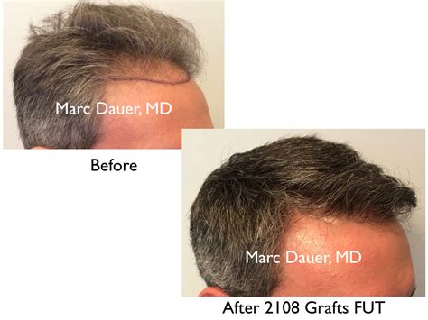 prescreened hair transplant physicians prescreened hair transplant physicians prescreened hair