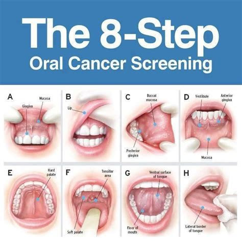 8 step cancer find your practice s