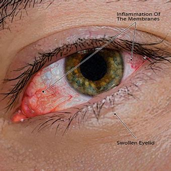 symptoms of pink eye how to get rid of pinkeye symptoms treatment causes pictures