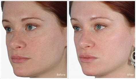 Before And After Pictures Of Pigmentation On Skin   before and after pictures of pigmentation on skin
