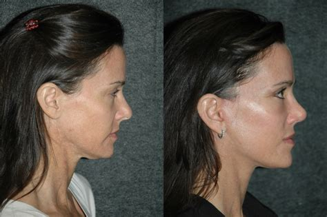 hairstyles that cover face lift scars hairstyles that cover face lift scars michael 55 mens