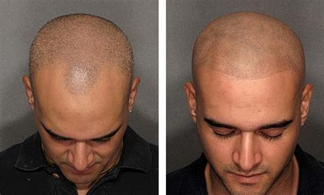 scalp micropigmentation to make hair ticker pictures kelowna area scalp micro pigmentation removal