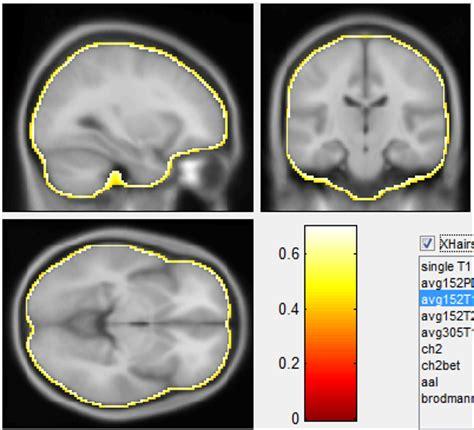 mni template xu cui 187 brain surface template
