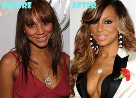 tamar braxton nose job before after tamar braxton plastic surgery fact or rumor lovely