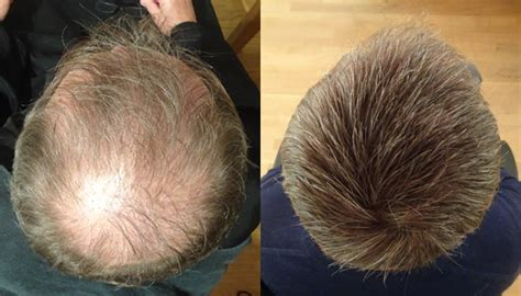 covering thinning hair on crown thinning crown international hair studio