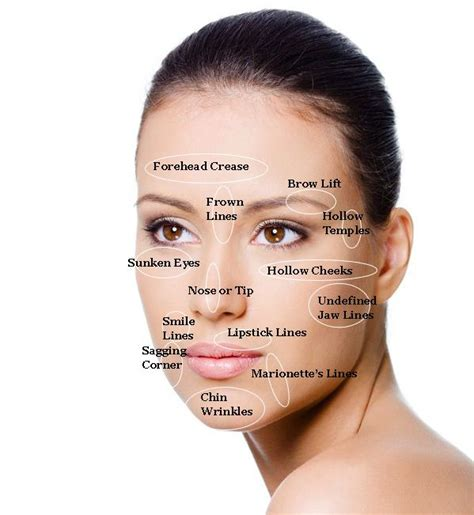 Where Your Wrinkle Filler Gets Injected Podcast by 1000 Images About Exles Of Medspa Aesthetic Clinic
