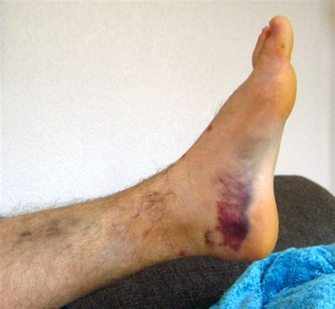 Interior Ankle Sprain by Moi Signs And Symptoms Sports Medicine Ankle Sprain
