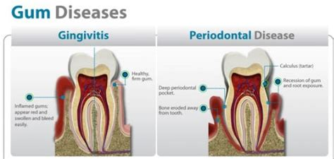 treat gum disease with remedies