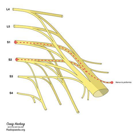 piriformis diagram sacral plexus diagrams image radiopaedia org
