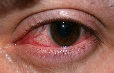 eye infection symptoms causes and symptoms of eye infections ocular infections