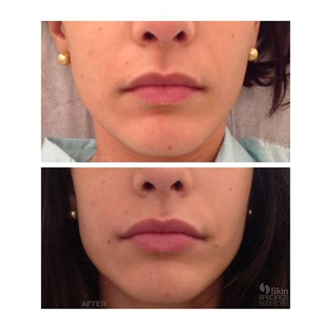 lip injections before and after small the of