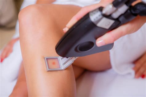 does laser hair removal hurt more than a tattoo laser hair removal make a smooth move towards it