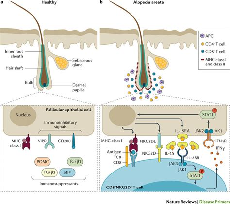 a review of acne in ethnic skin pathogenesis clinical 最新のprimer 円形脱毛症 nature reviews disease primers nature