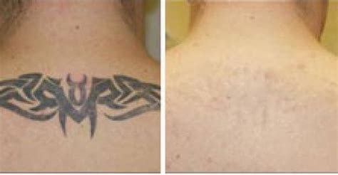 yag laser tattoo removal before and after change of