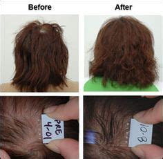 natural hair thinning crown thinning or no edges use this product to fill them in video