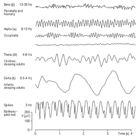 eeg pattern in math ch 12 electrical and chemical activity in the brain