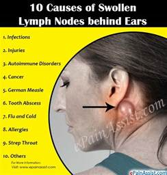 10 causes of swollen lymph nodes ears