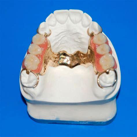 protesi mobile parziale studio cese cos 232 la protesi dentale rimovibile