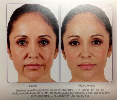 Botox Detox And Recovery Guide by 21 Best Images About Exercise Lift It Lines