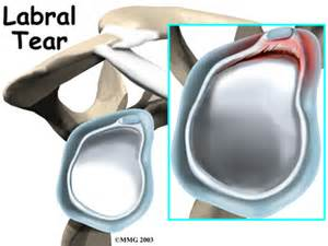 labral tears orthogate