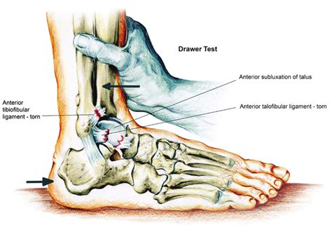 What Is The Anterior Drawer Test by Acute Ankle Sprain Conservative Or Surgical Approach Pdf Available