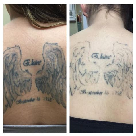 laser tattoo removal san jose before after one session with picotechnology at absolute