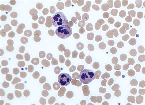 High White Blood Cell Count In Stool by Neutrophil