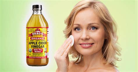 spot apple cider vinegar the best way to utilize apple cider vinegar for age spots the food world news