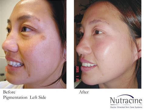 before and after pictures of pigmentation on skin pigmentation nutracine skin