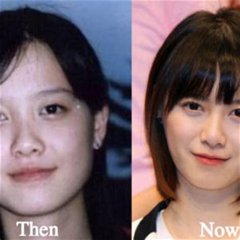 lee seung gi hair loss tara reid plastic surgery before and after photos latest