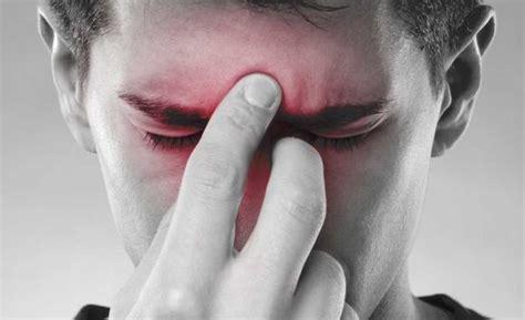 mal di testa e sinusite sinusite sintomi e rimedi naturali
