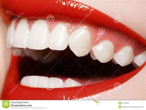 Hera Sourire De Bonheur Lipstick dentaire sourire heureux dents blanches saines rire