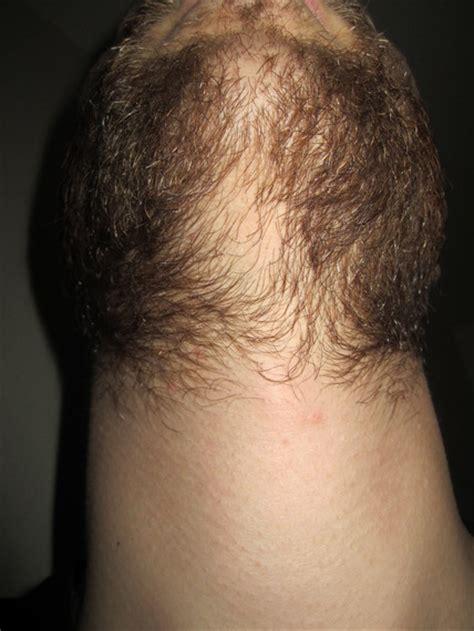 shiny red hair under chin weak under chin beard board