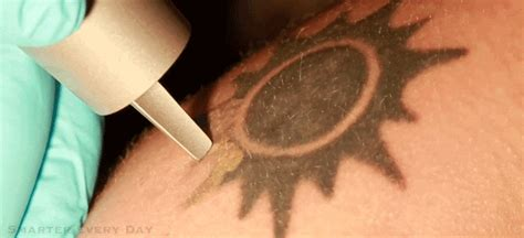 painless tattoo removal cream being developed by phd