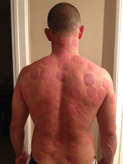Cupping Detox cupping therapy detox medicine