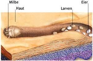 grasmilben im bett fl 246 he wanzen und milben symptome beschwerden ursachen