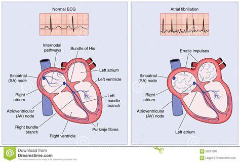 atrial fibrillation diagram normal electrical conduction and atrial fibrillation