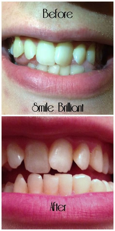 smile brilliant teeth whitening review
