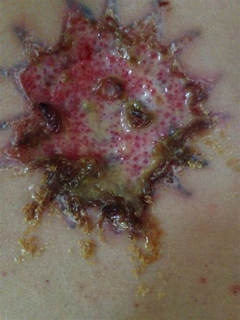 infected laser tattoo removal faq about removal beautyteck
