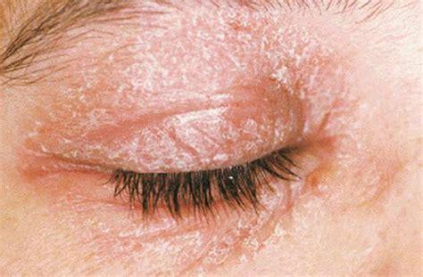 dermatite da allergia alimentare allergia da contatto foto e immagini foto 7 40 tanta