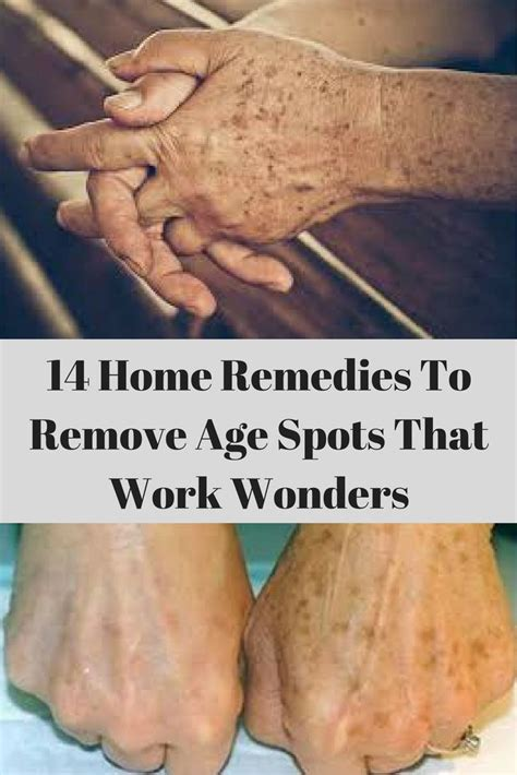 Find On By Age Best 25 Age Spot Removal Ideas On Spot