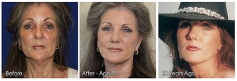 Is A Mini Lift A Facelift Alternative by Facelift Vs Mini Facelift Difference And Comparison