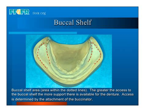 Buccal Shelf complete dentures 3 history and